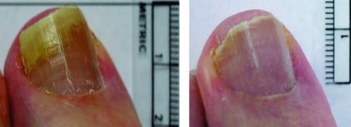 lunula-laser-for-toenail-fungus